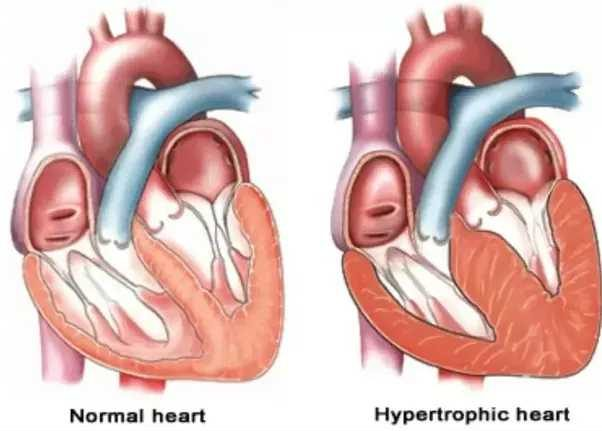 Enlargement Of Heart Muscles
