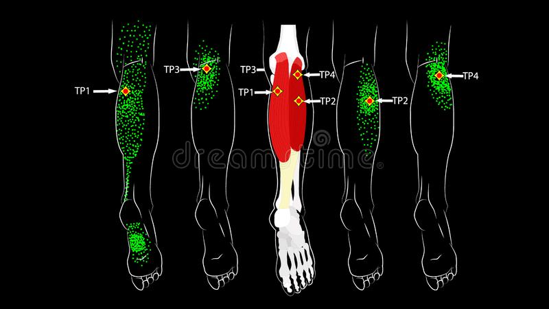 Calf muscle. Trigger points in the leg, reflected pain on the back of the thigh and in the foot. Leg pain. Calf muscle. Trigger points in the leg, reflected pain vector illustration