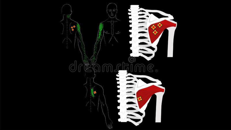 Infraspinatus muscle. Trigger points and pain in the arm and shoulder blade. The deep muscles of the arm. Vector image. Infraspinatus muscle. The deep muscles of vector illustration