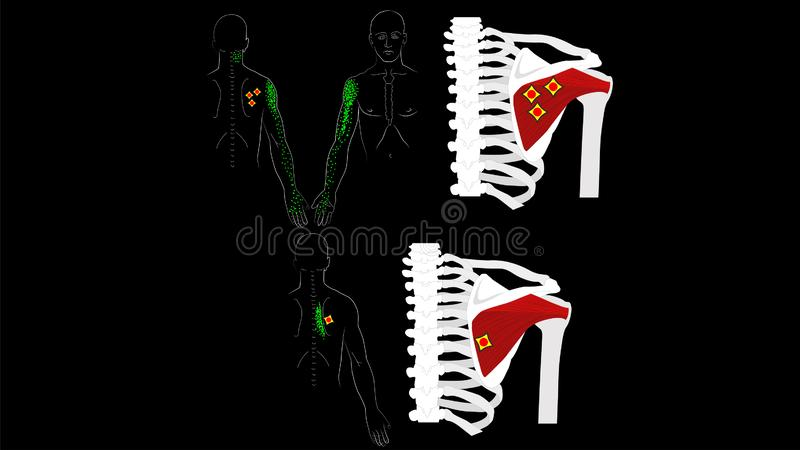 Infraspinatus muscle. Trigger points and pain in the arm and shoulder blade. The deep muscles of the arm. Image on a black. Infraspinatus muscle. The deep stock illustration