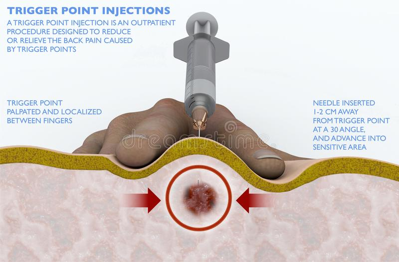 A trigger point injection is an outpatient procedure designed to reduce or relieve the back pain caused by trigger points Intramus. A trigger point injection is stock illustration