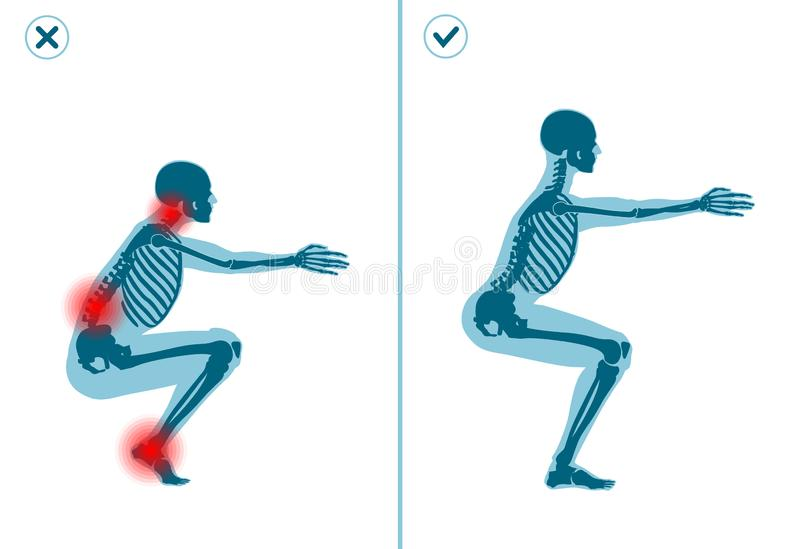 Wrong and correct air squat exercise. Right execution technique of sport gymnastics. Common mistakes in sport workout. Wrong and correct air squat exercise stock illustration