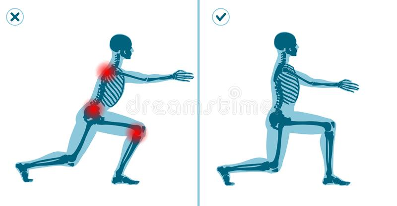 Wrong and correct lunges exercise. Right execution technique of sport gymnastics. Common mistakes in sport workout. Wrong and correct lunges exercise. Right and royalty free illustration