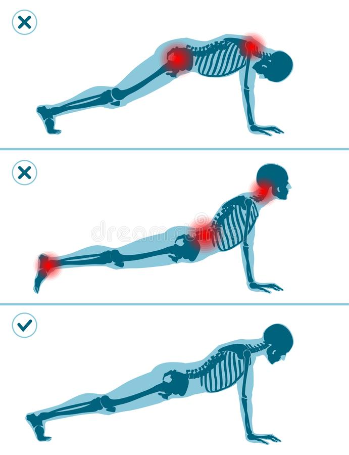 Wrong and correct plank pose. Right and wrong execution technique of sport exercise. Common mistakes in sport workout. Man standing on hands before push ups royalty free illustration